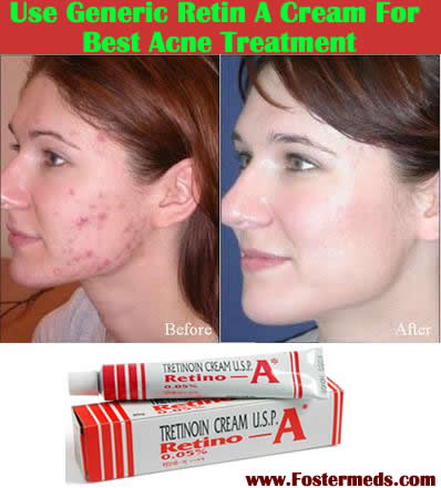 Use of tretinoin cream
